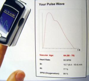 Bio Clip – cu intregistrarea grafica a curbei pulsului, varsta biologica a arterelor, indexul de rigiditate si gradul de oxigenare a sangelui