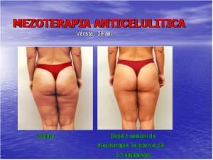 Mezoterapia anticelulitica