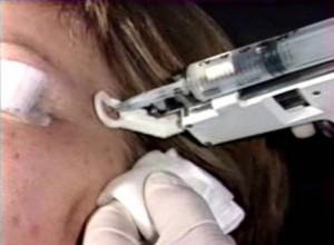 Pistolet de Mezoterapie DHN Electronic 3, Italia